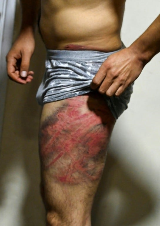 Beatings after Covering Protest