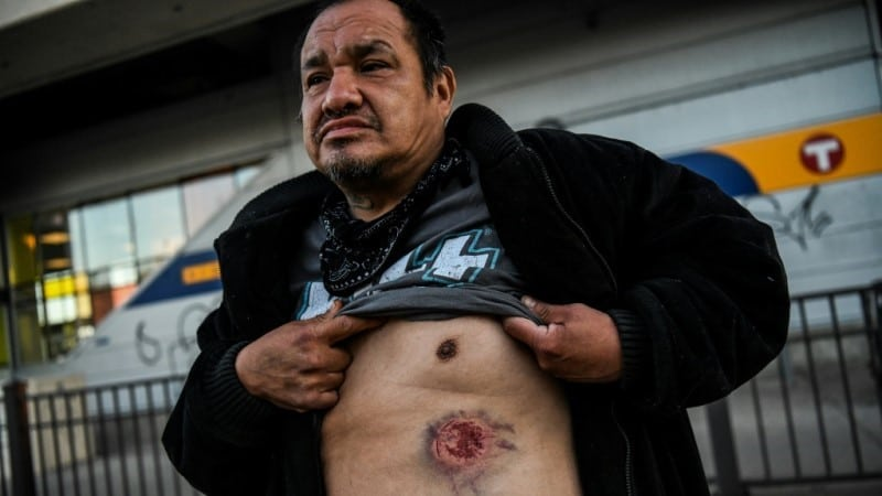 Wound Caused by Tear Gas Shell