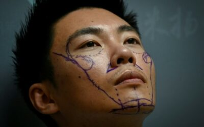 Men in China Go under the Knife to Boost Life Chances