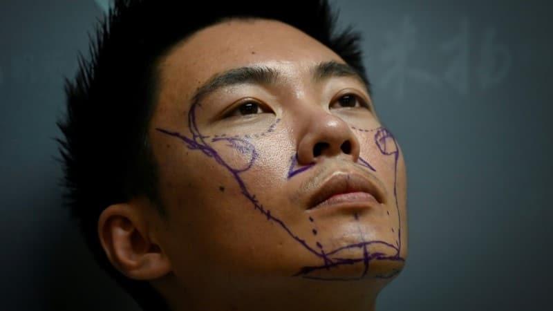 Xia Shurong to Undergo Nose Surgery